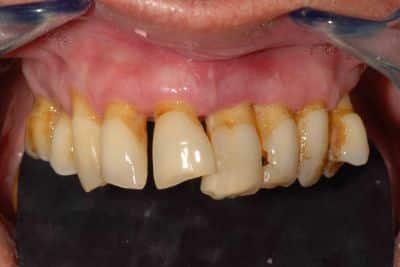 Parodontite avanzata (piorrea): particolare della situazione iniziale dell'arcata superiore.