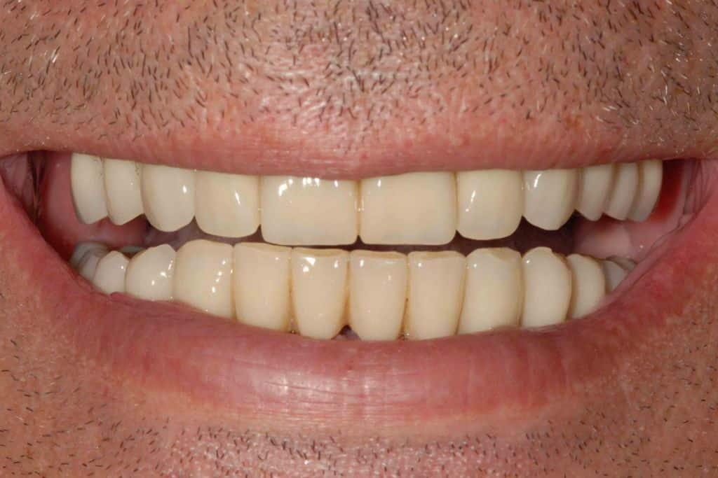 Il sorriso del paziente dopo la riabilitazione provvisoria di entrambe le arcate con tecnica OnlyOne®.