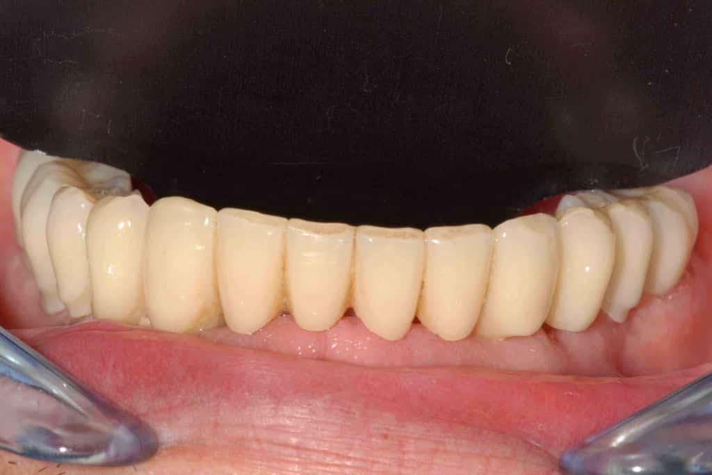 La riabilitazione provvisoria con tecnica OnlyOne® dell'arcata inferiore: emergenza dei denti dalle gengive naturali..