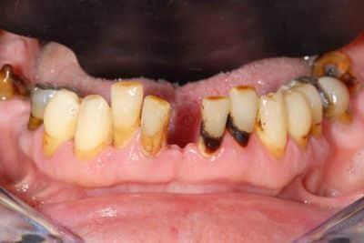 Parodontite: la situazione iniziale dell'arcata inferiore.