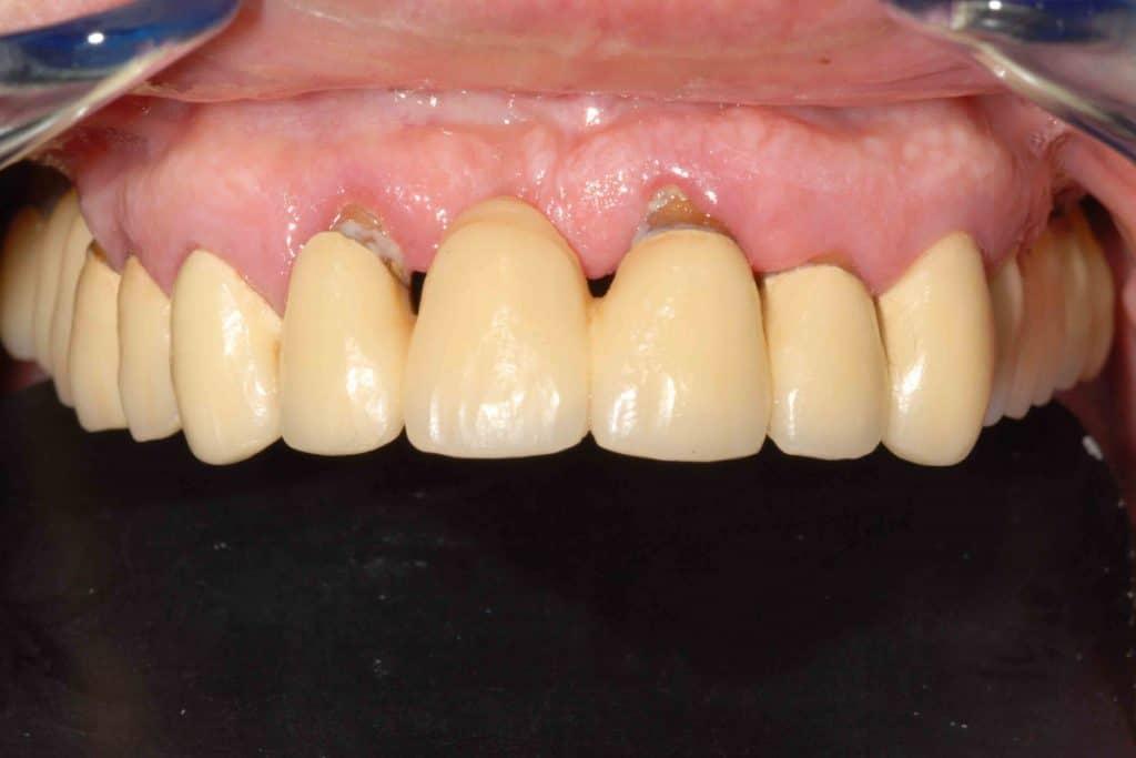 Parodontite avanzata (piorrea): la situazione iniziale.