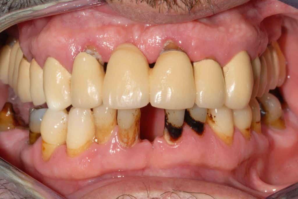 Parodontite: la situazione iniziale di entrambe le arcate.