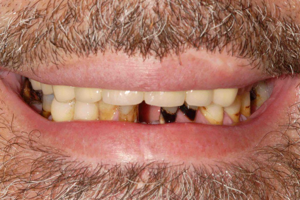 Parodontite: il sorriso iniziale.