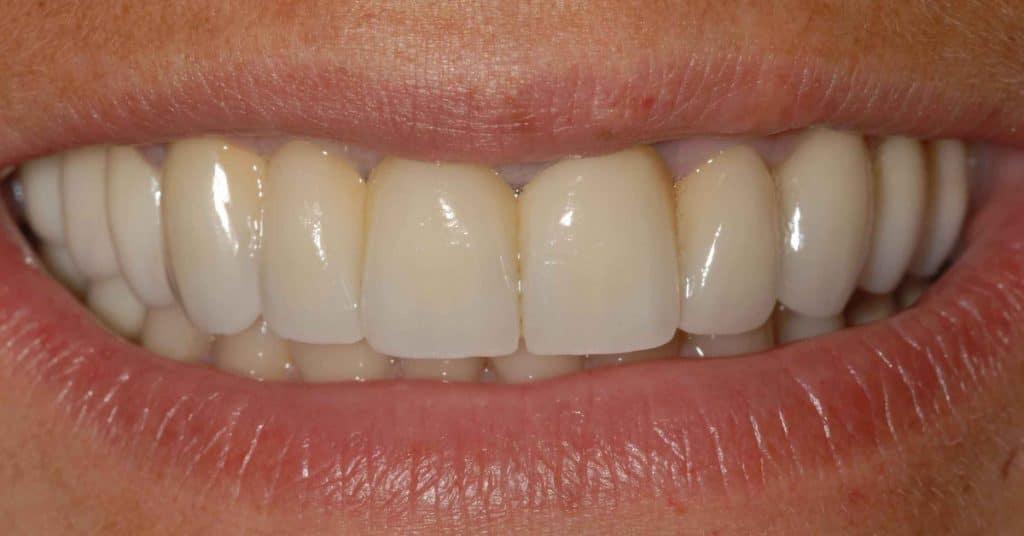 Riabilitazione finale in zirconio-ceramica a 2 anni e mezzo dall'intervento.