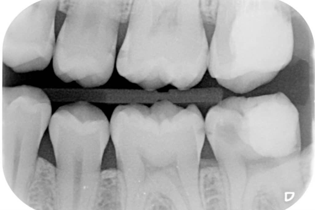 Radiografia bitewing