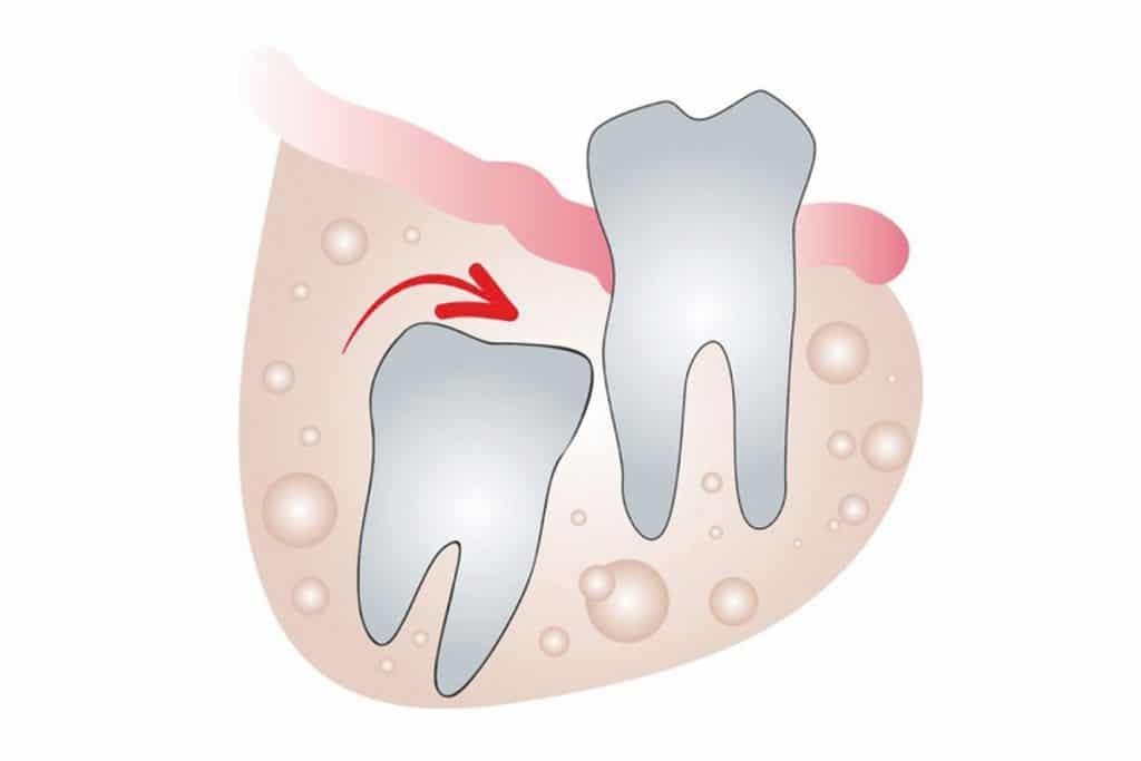 dente del gudizio incluso 2 1024x683 - Dente del giudizio cause, sintomi e cura