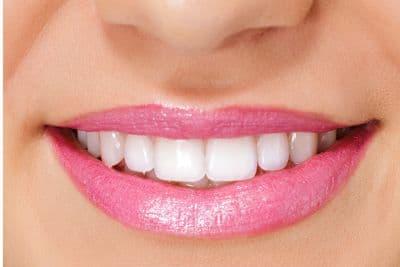 impianti e parodontite