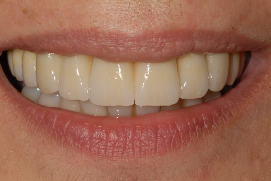 Parodontite e implantologia sorriso finale