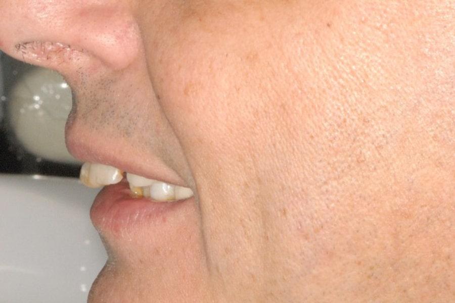 carico immediato. La situazione iniziale di profilo: paziente con parodontite.