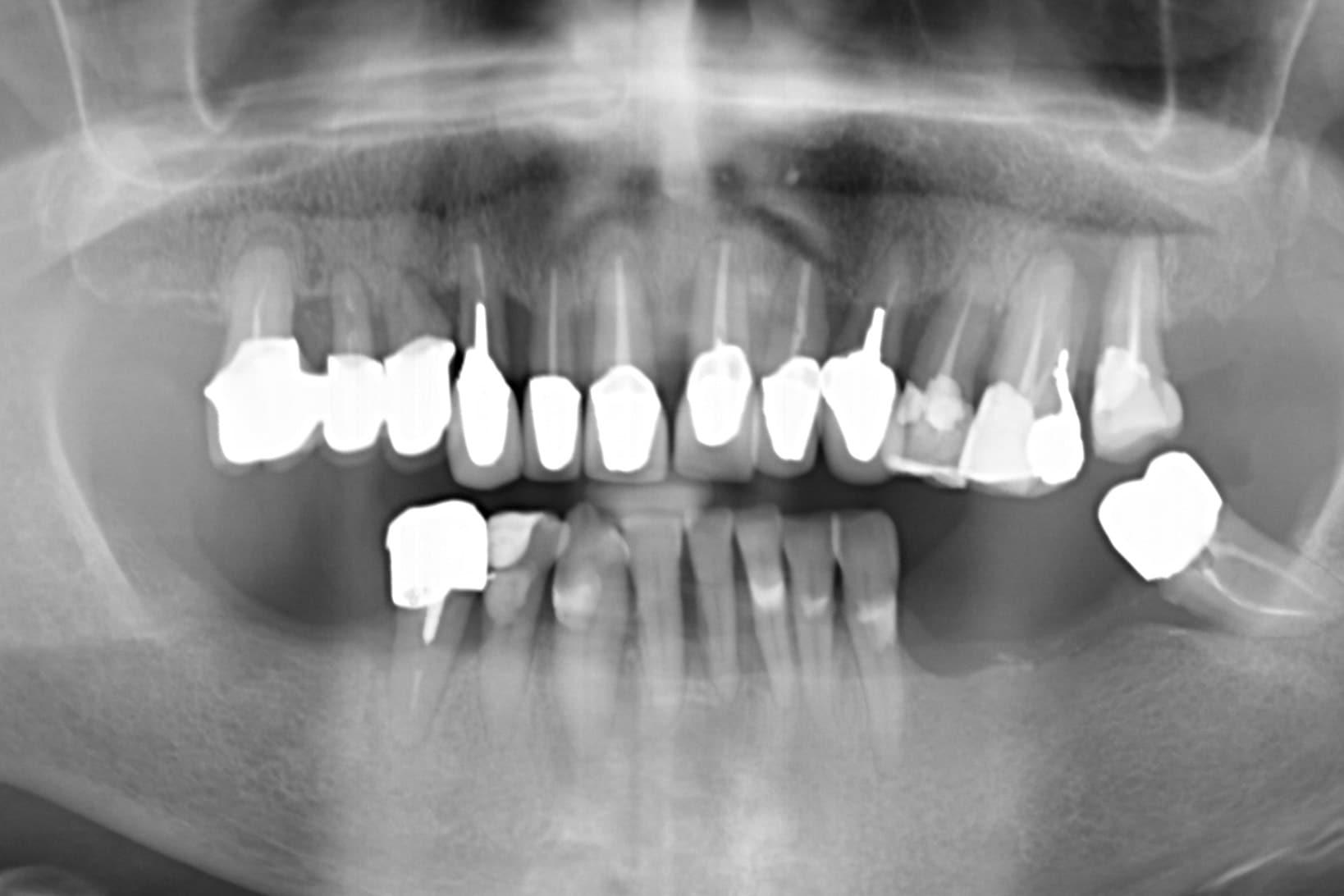 parodontite cura la panoramica iniziale