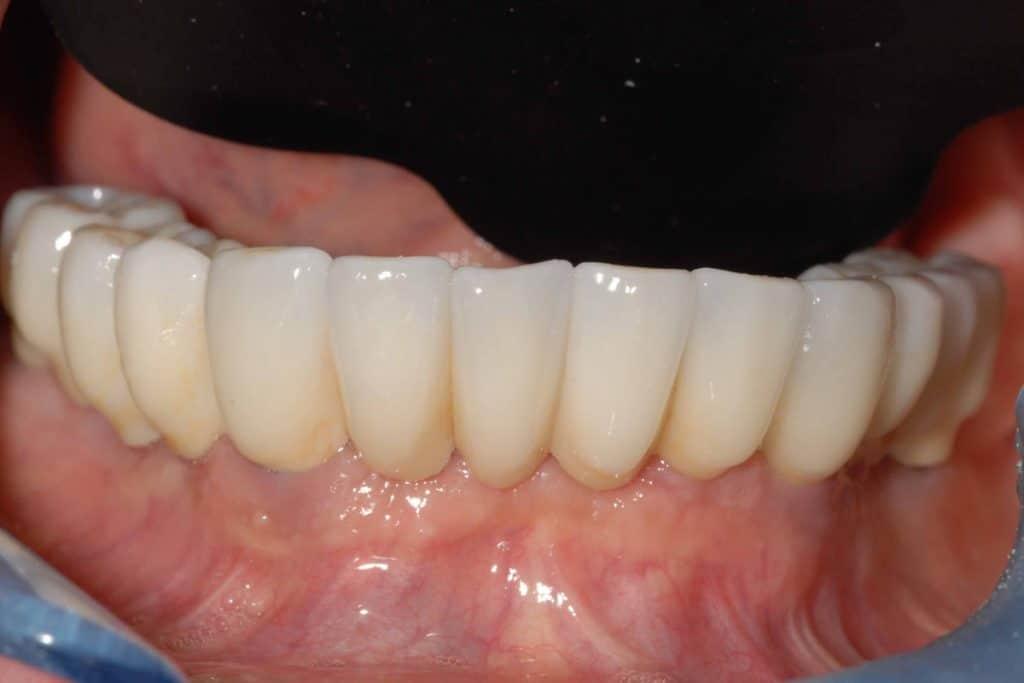 Parodontite grave e implantologia carico immediato riabilitazione arcata inferiore