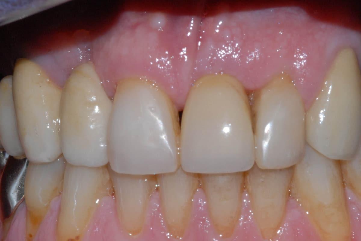 Nella foto il provvisorio avvitato sugli impianti dentali dopo 24 ore.