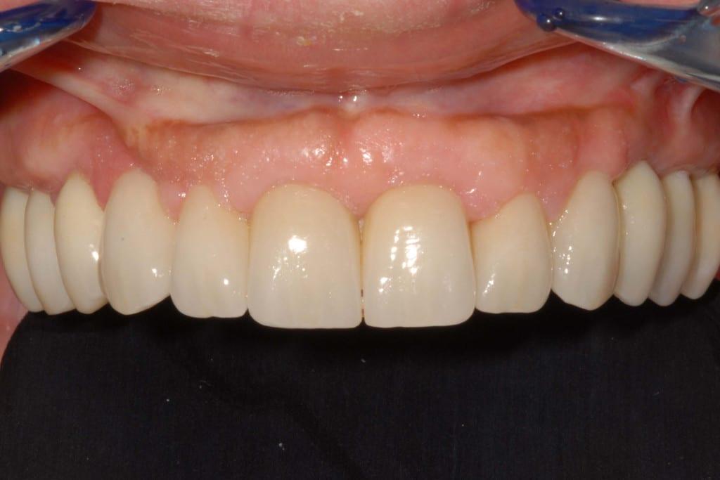 Riabilitazione definitiva con l'emergenza dei denti dalle gengive naturali: protocollo OnlyOne®.