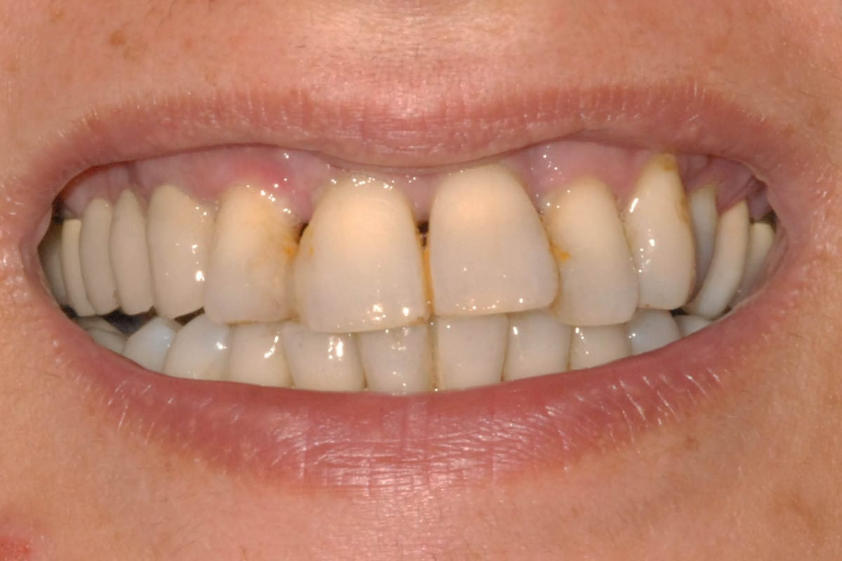 Parodontite e implantologia prima