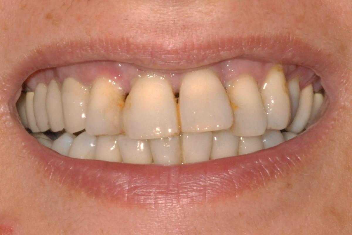 Parodontite e implantologia iniziale
