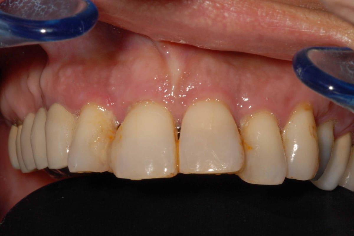 Situazione iniziale: parodontite di grado avanzato.