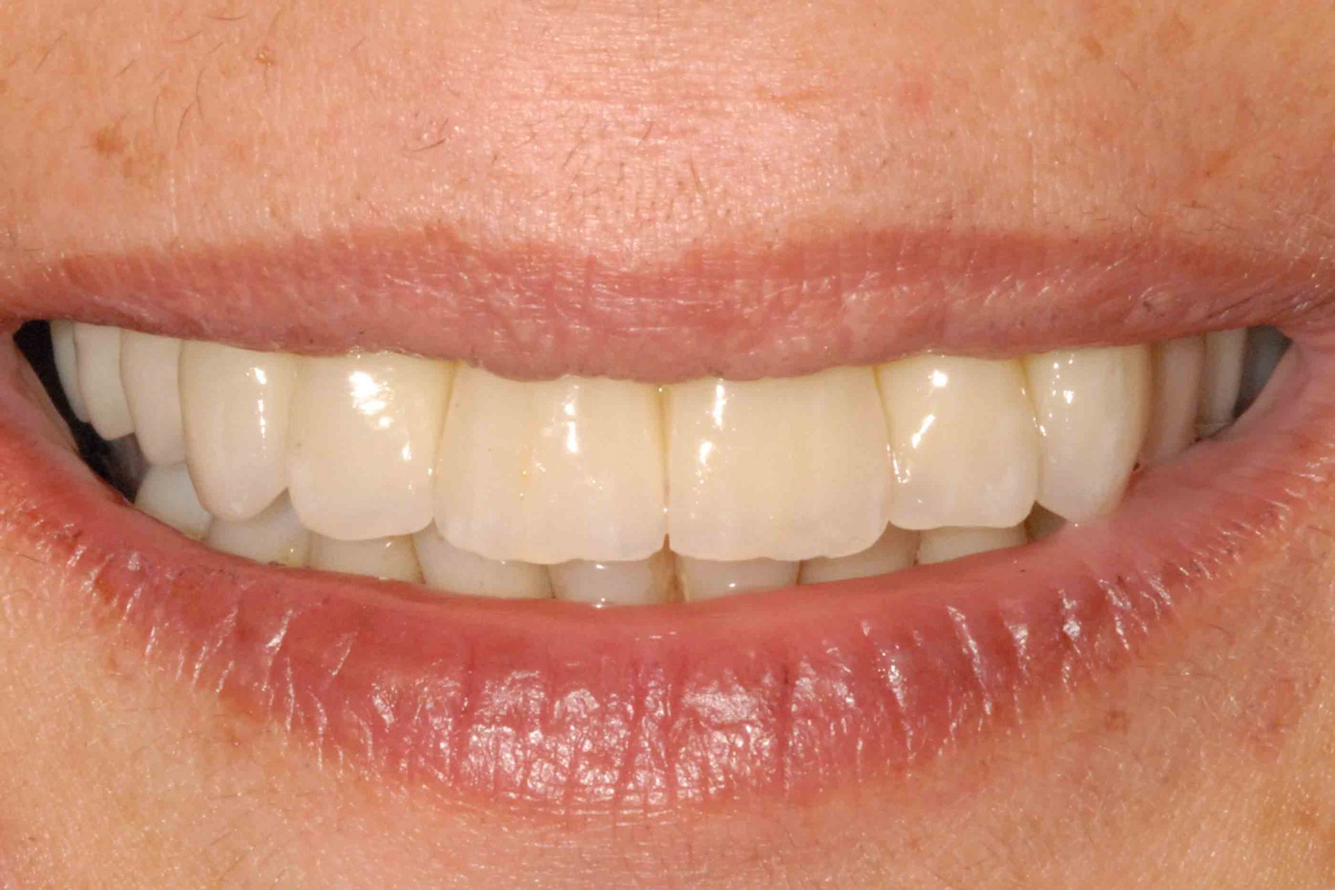 Parodontite e implantologia sorriso