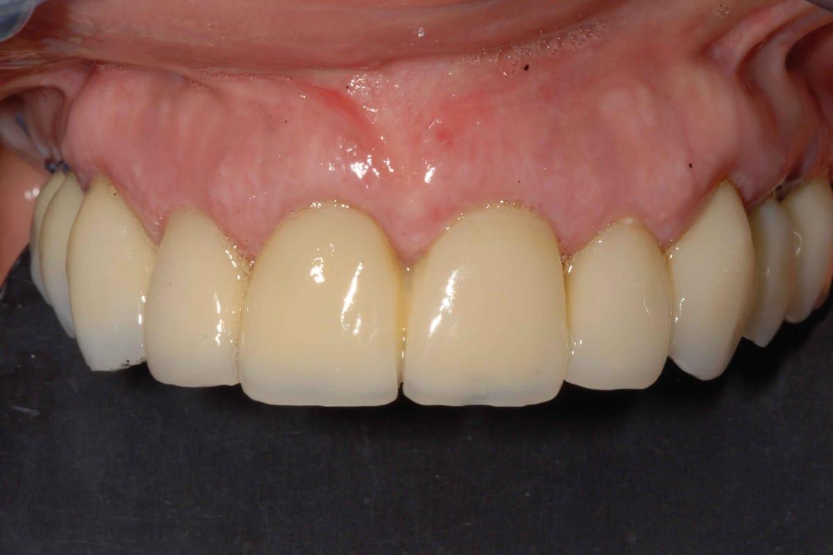 Provvisorio avvitato sugli impianti dentali dopo 24 ore dall'intervento.