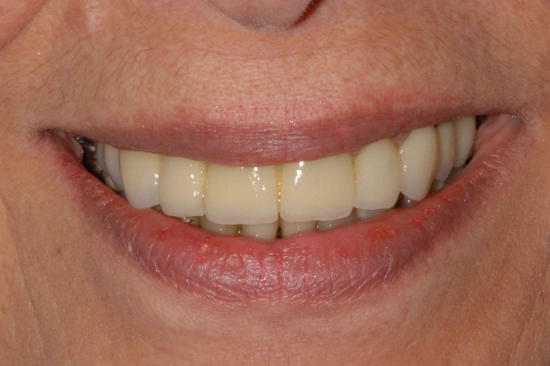 Malattia autoimmune. Il sorriso dopo la riabilitazione. Implantologia dentale con protocollo OnlyOne®.