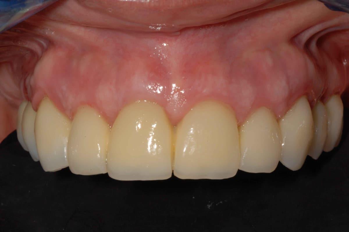 Provvisorio avvitato sugli impianti dentali dopo 14 giorni dall'intervento.