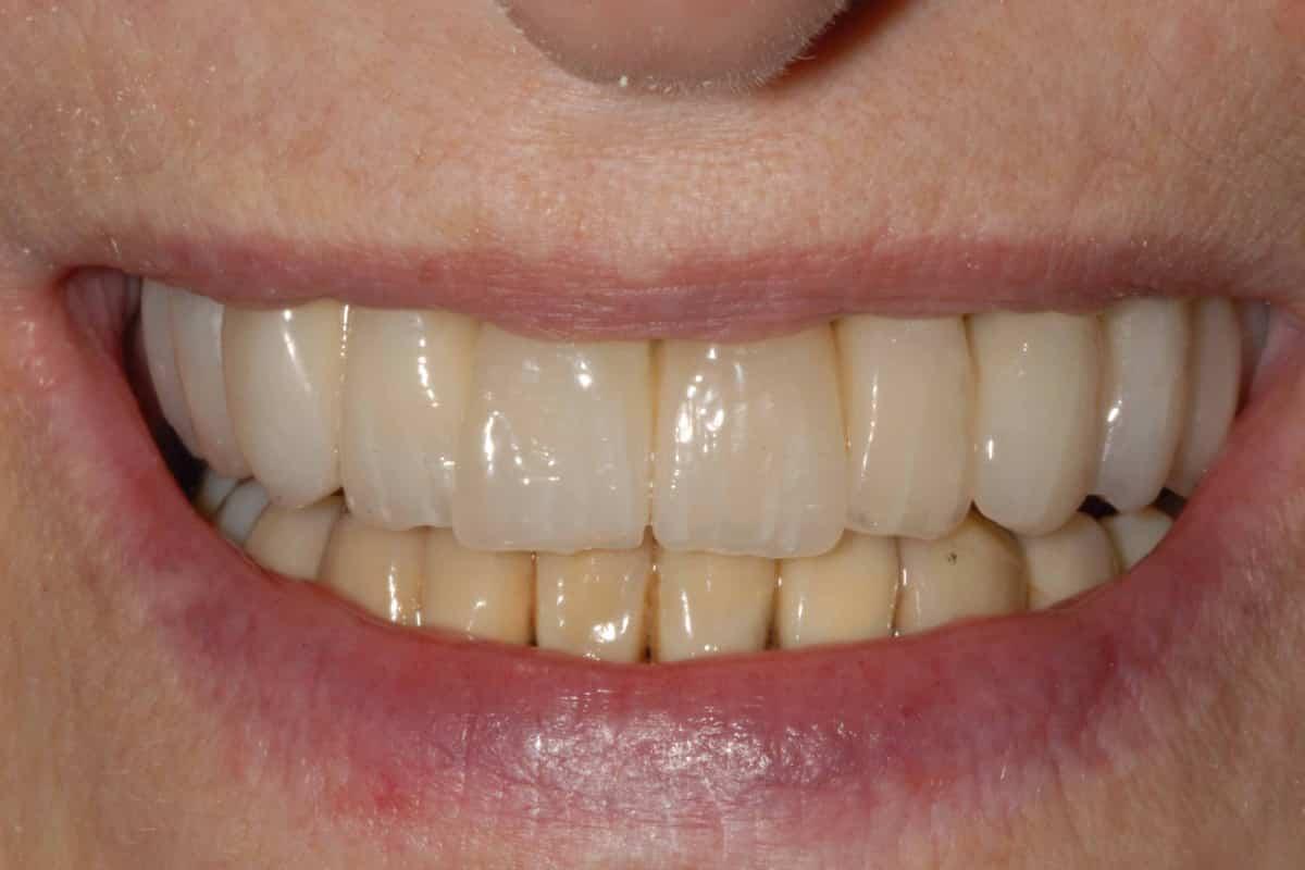 impianti e parodontite sorriso finale