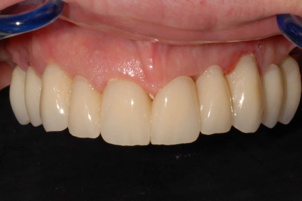 carico immediato. Il provvisorio avvitato sugli impianti dentali dopo 20 giorni dall'intervento con protocollo OnlyOne®
