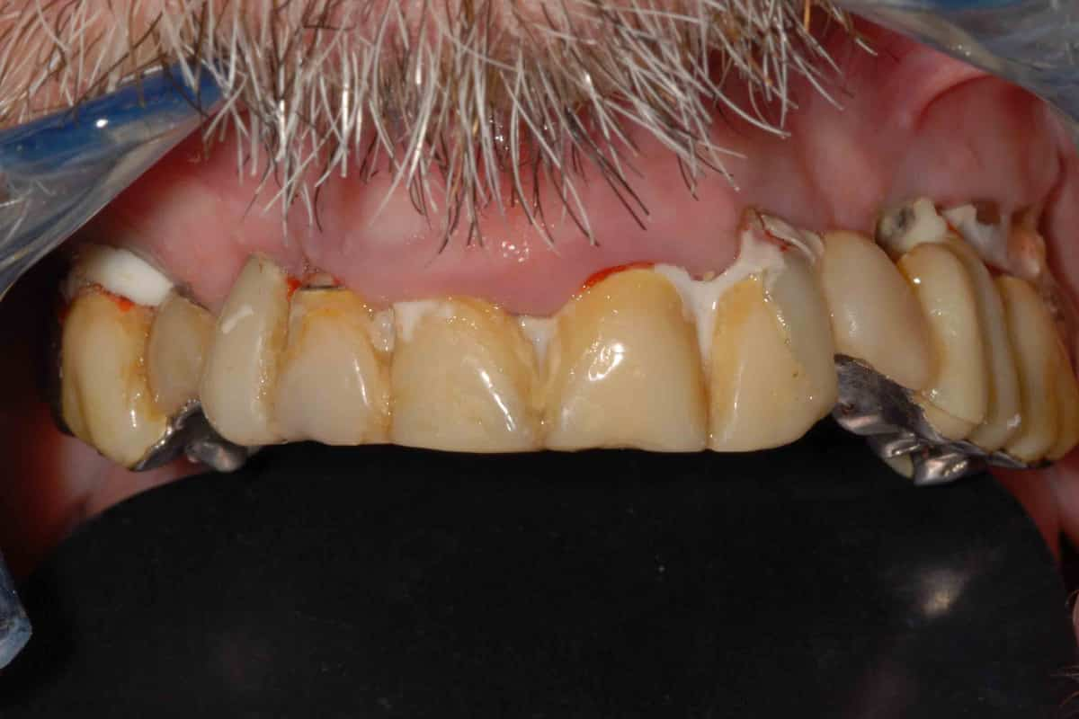 Implantologia. Caso di poco osso nella zona molare: la situazione iniziale.