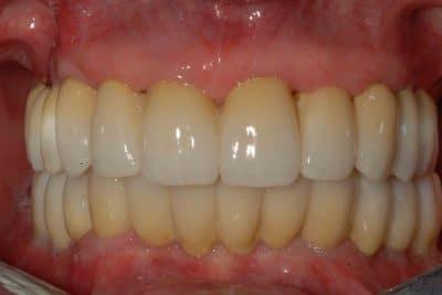 Riabilitazione definitiva arcata superiore con Implantologia OnlyOne®.