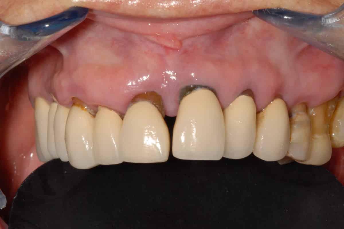 parodontite cura la situazione