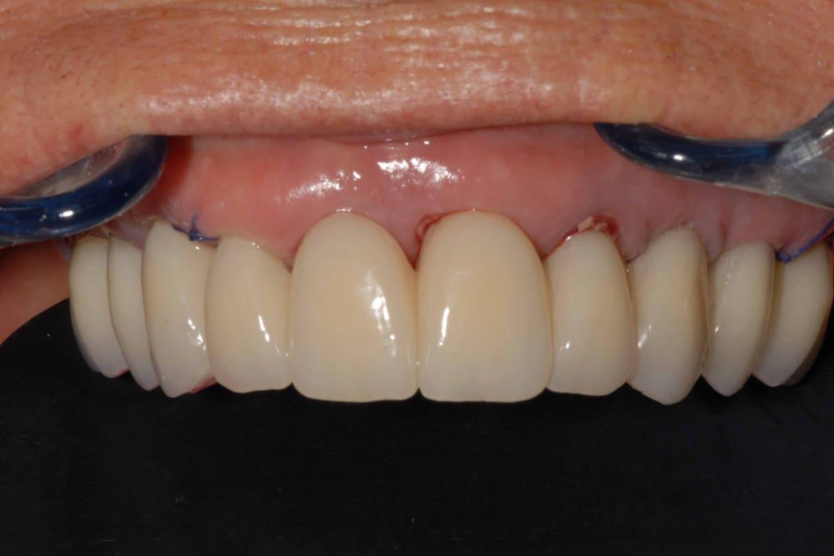 parodontite cura dopo