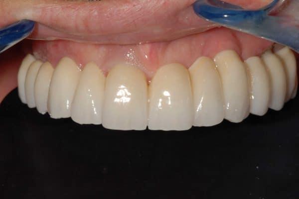 carico immediato. La riabilitazione definitiva dell'arcata superiore in zirconio-ceramica dopo 8 mesi dall'intervento con protocollo OnlyOne®.