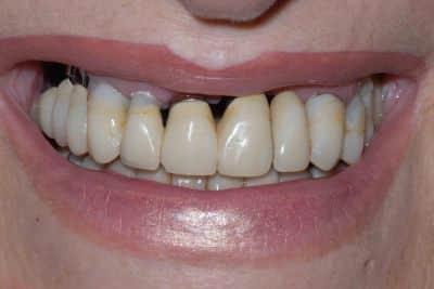 Impianti e parodontite il sorriso il sorriso prima del trattamento