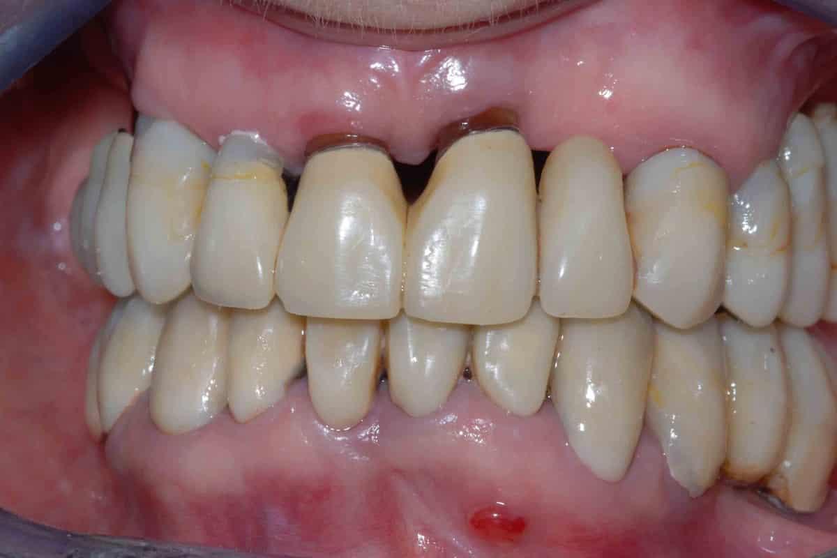 Impianti e parodontite prima