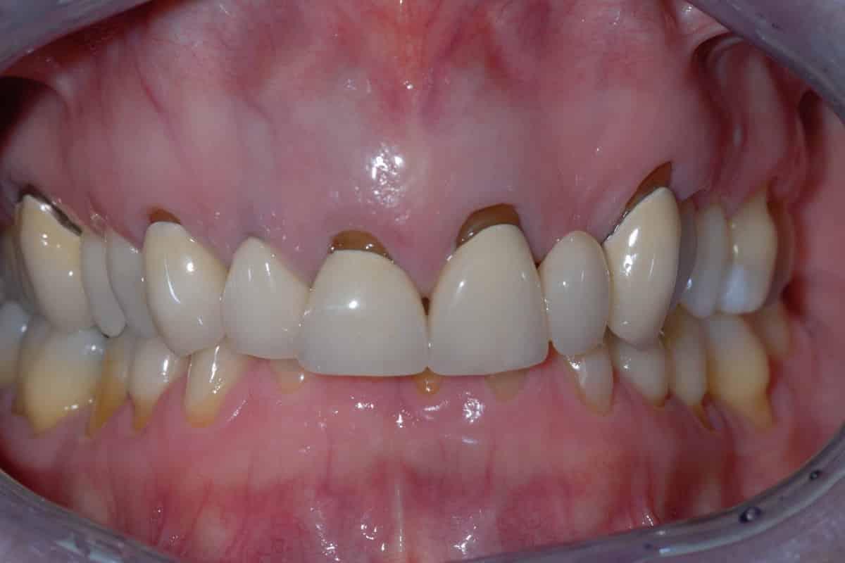 Vecchie corone sui denti anteriori superiori: la situazione iniziale.