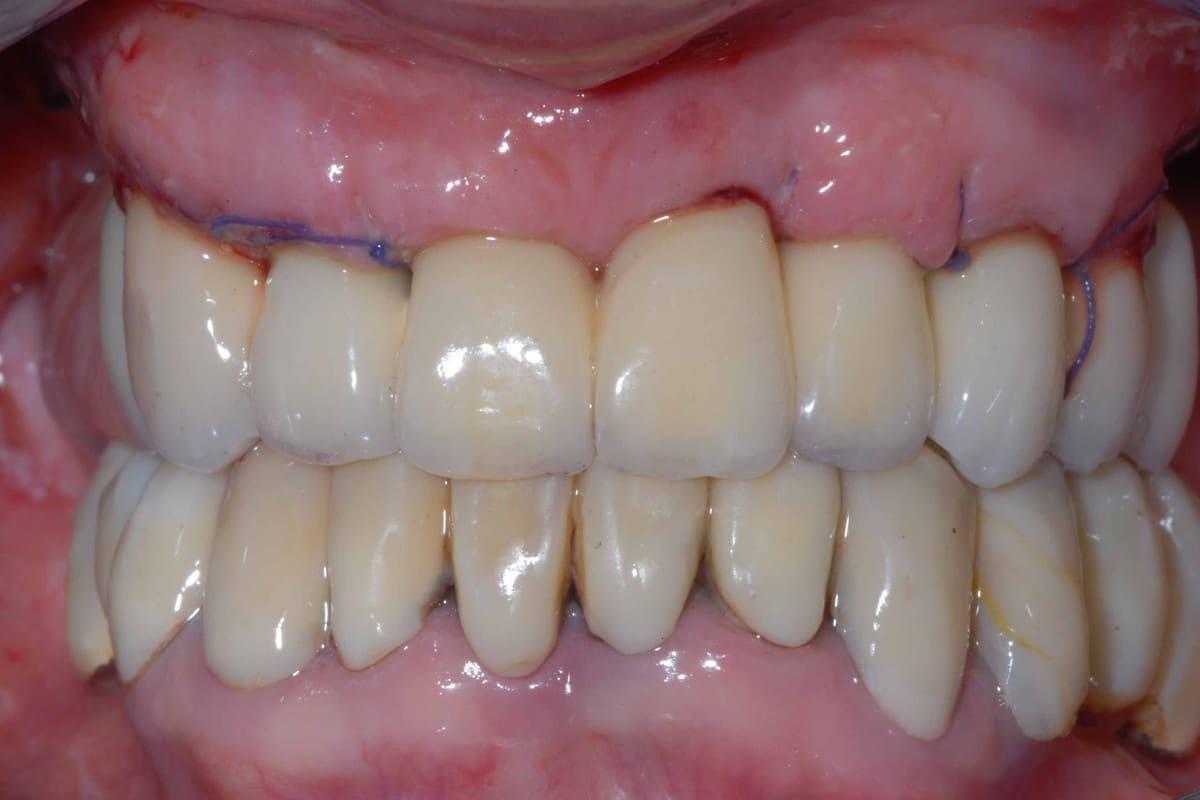 impianti e parodontite provvisorio