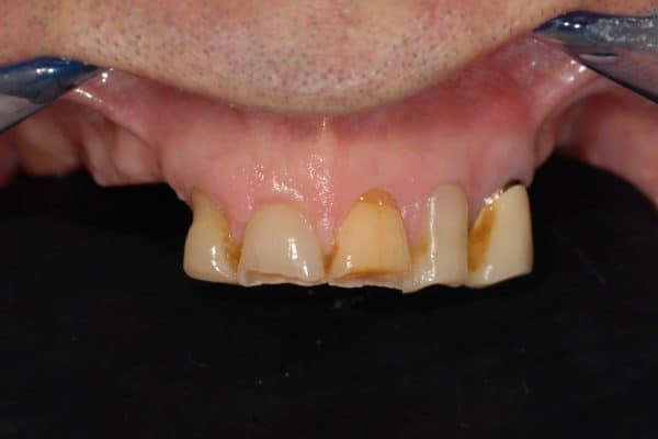 Poco osso:nella foto i denti residui dell'arcata superiore.