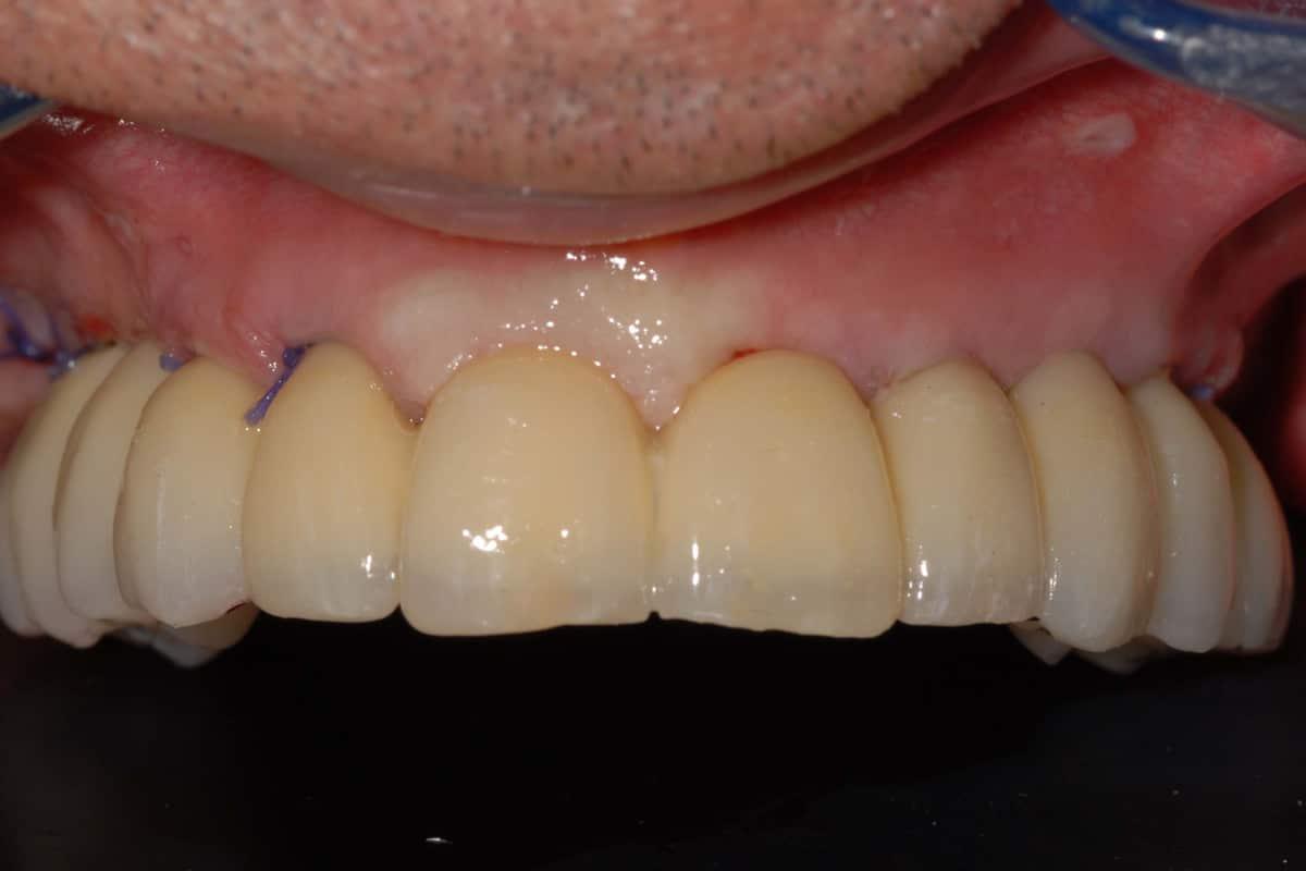 Poco osso:nella foto la riabilitazione provvisoria con impianti dentali dell'arcata superiore.