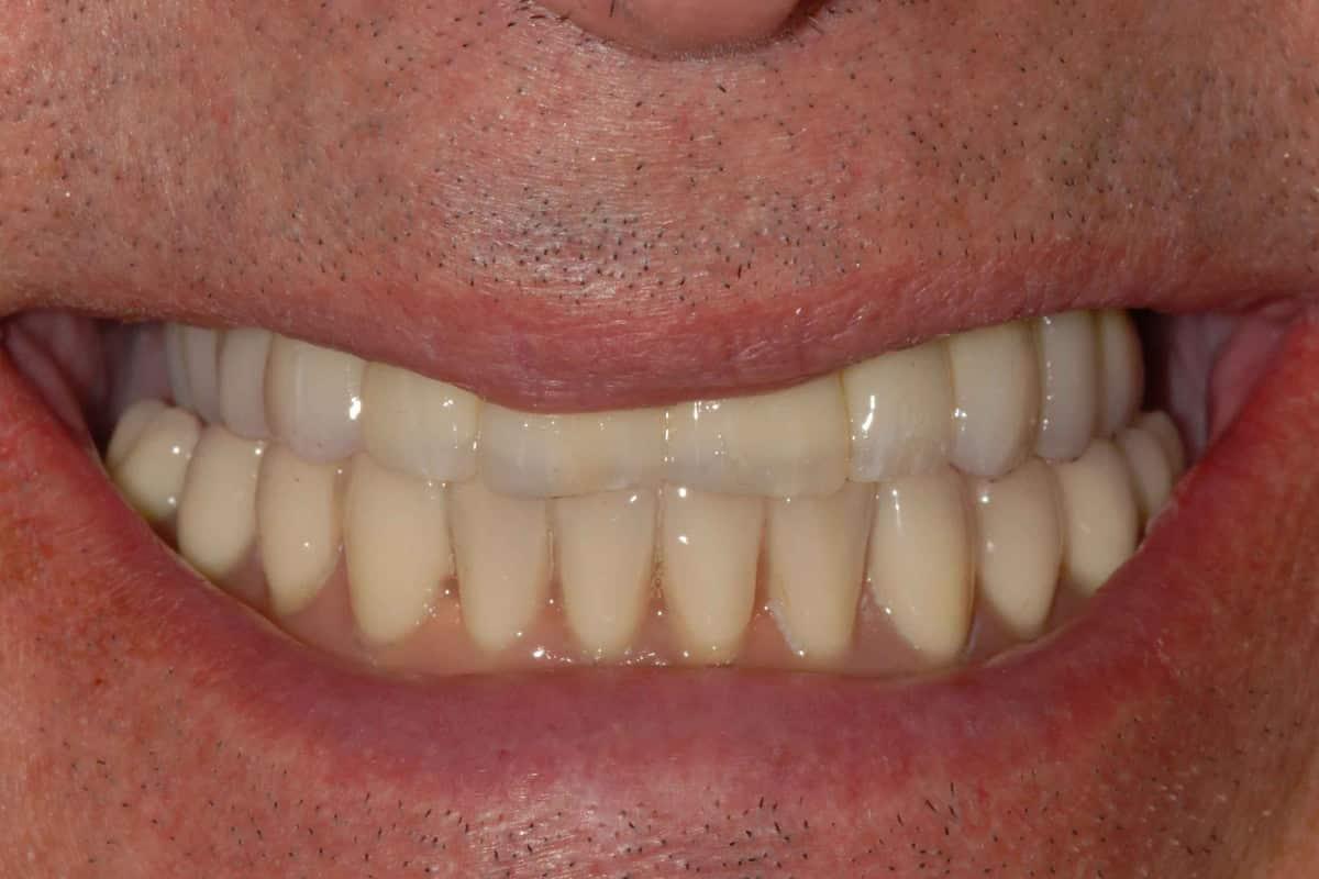 Poco osso: riabilitazione finale.Il sorriso.