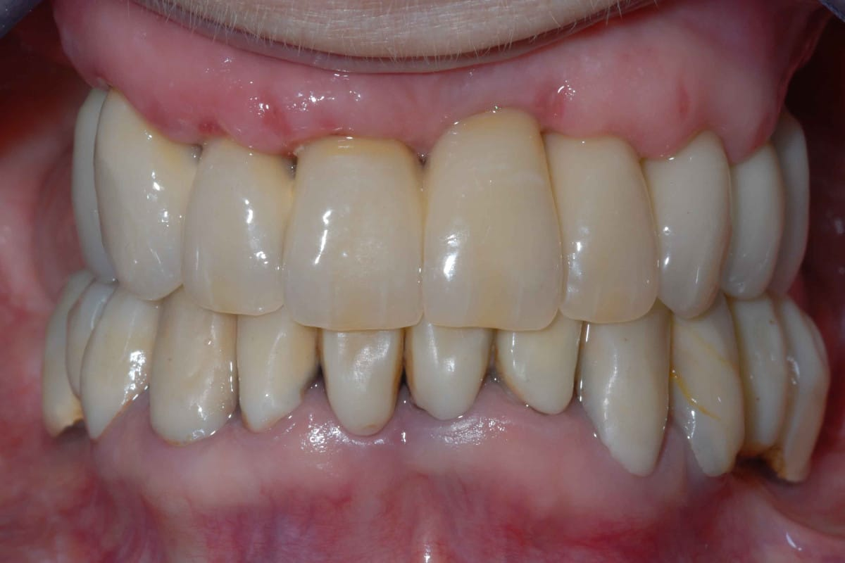 impianti e parodontite 14 giorno