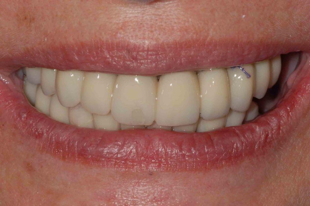 Il sorriso dopo l intervento caso 84 1024x683 - Parodontite avanzata in entrambe le arcate. Carico immediato