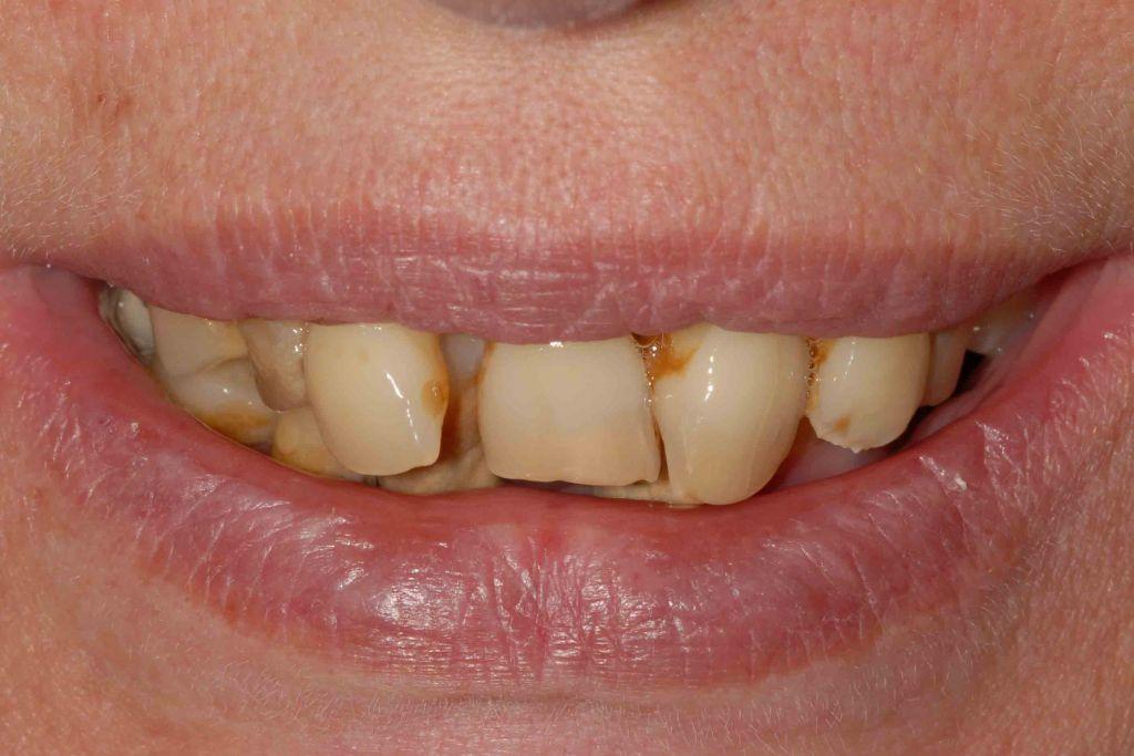 Parodontite avanzata il sorriso prima dell intervento caso 84 1024x683 - Parodontite avanzata in entrambe le arcate. Carico immediato