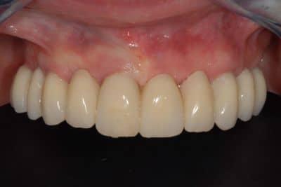 parodontite avanzata, 5 mesi dall'intervento