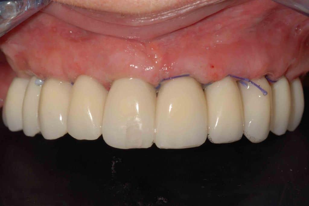 Riabilitazione dopo 24 ore con protocollo OnlyOne%C2%AE caso 84 1024x683 - Parodontite avanzata in entrambe le arcate. Carico immediato