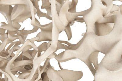 cover rigenerazione e ricostruzione ossea in implantologia dentale