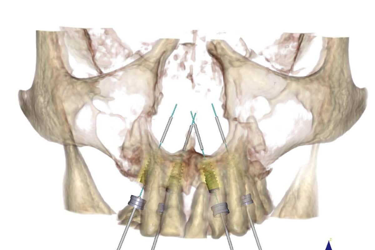 Simulazione digitale dell'intervento con posizionamento degli impianti sfruttando in modo ottimale, grazie alla tecnica OnlyOne®, il poco osso residuo.