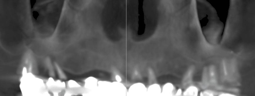 Implantologia .Caso di poco osso nella zona molare: la panoramica iniziale.