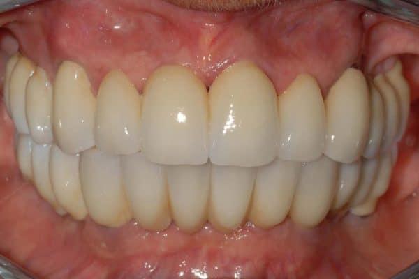 Parodontite grave e implantologia carico immediato riabilitazione finale