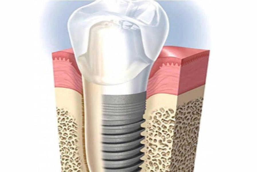 Impianto dentale sano