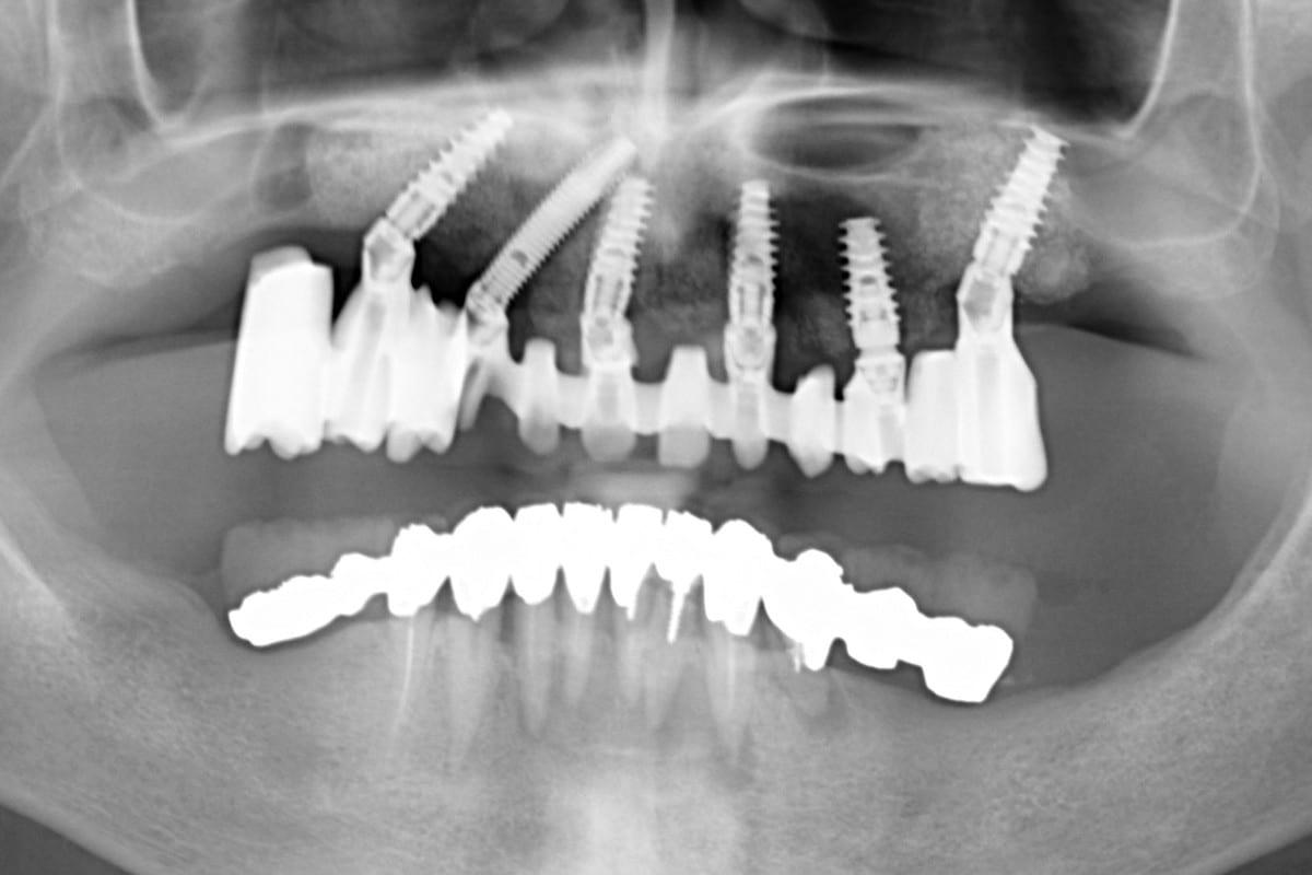 impianti e parodontite panoramica dentale