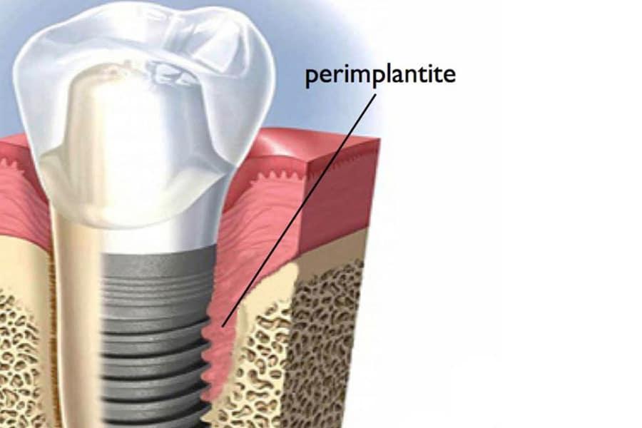 perimplantite - Impianti dentali curiosità